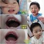 10M14D(5顆牙)~11M19D(7顆牙)