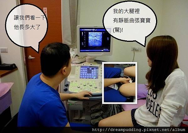 靜脈屈張2