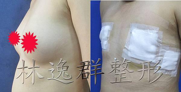 環乳暈乳房切除左45面十天