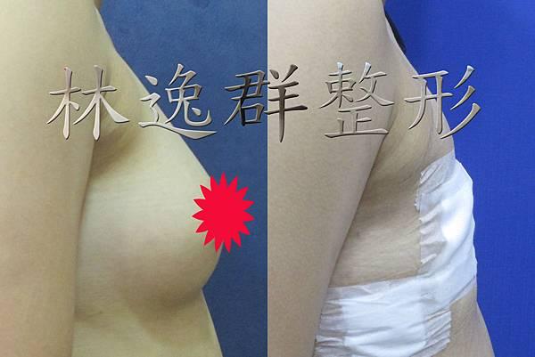 環乳暈乳房切除右面十天