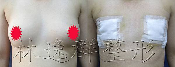 環乳暈乳房切除正面十天