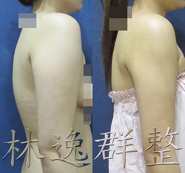 151123手臂抽脂三個月右面拷貝.jpg