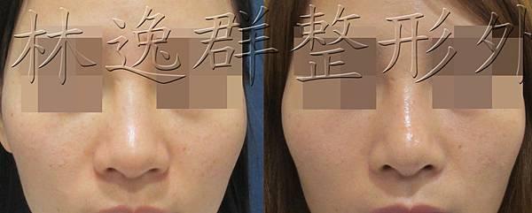 160422眼睛鼻子正面拷貝.jpg