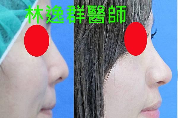三段式隆鼻1右面.jpg