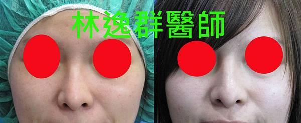 三段式隆鼻1正面拷貝.jpg