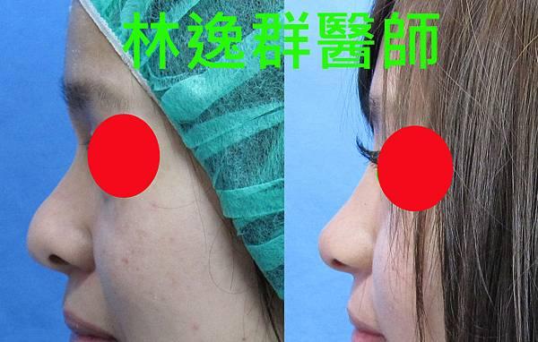 三段式隆鼻1左面.jpg