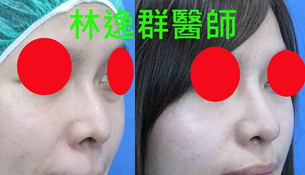 三段式隆鼻1右45面.jpg
