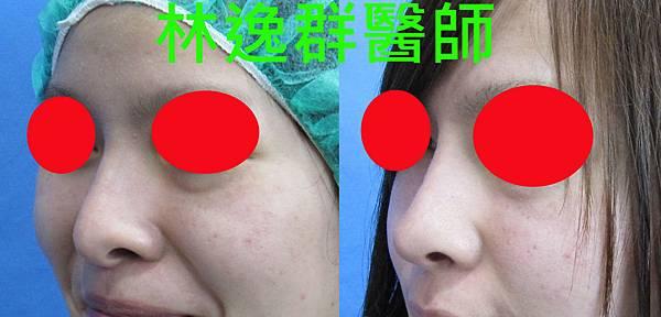 三段式隆鼻1左45面.jpg