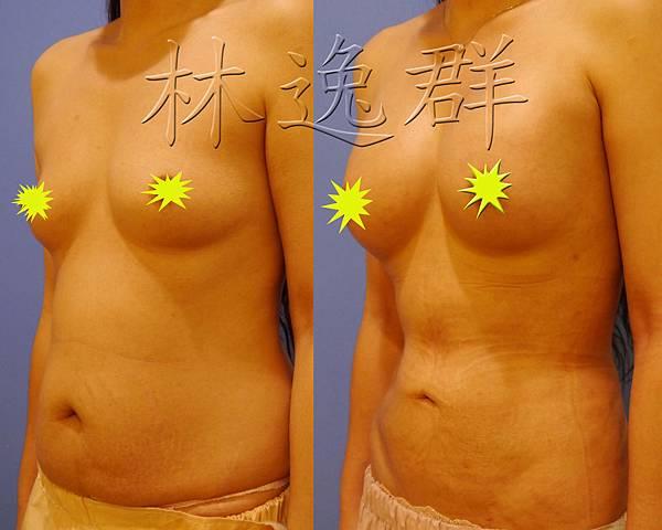 170123腹部環抽三個月左45面拷貝.jpg