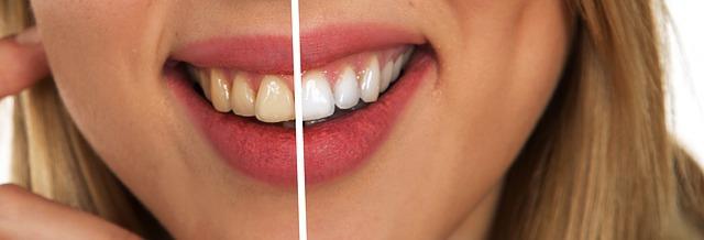 tooth-2414909_640.jpg