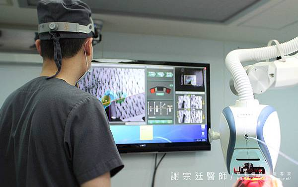 機器人植髮