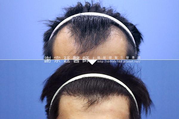 hair011.jpg