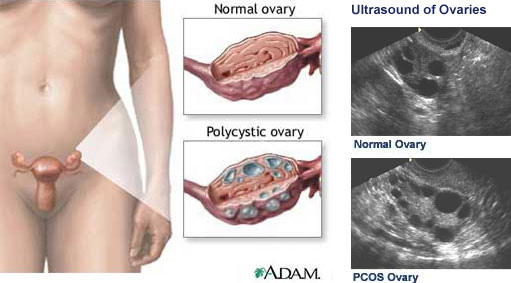 多囊性卵巢症候群.jpg