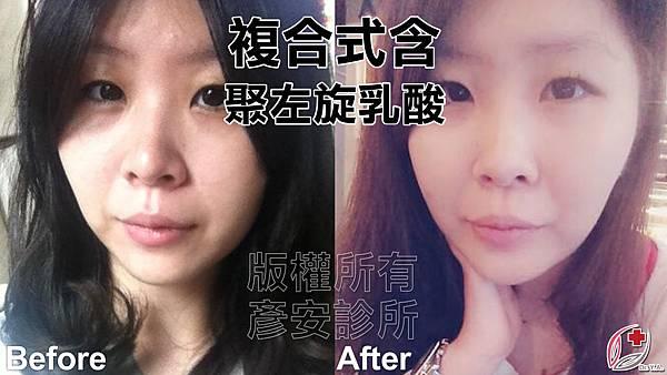 黃雍宗醫師-聚左旋