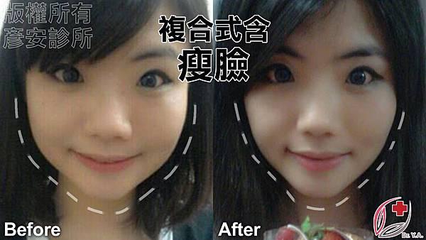意茹瘦小臉2.jpg