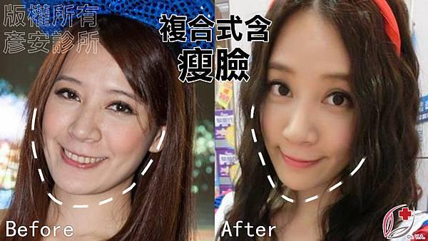 瘦臉2.jpg