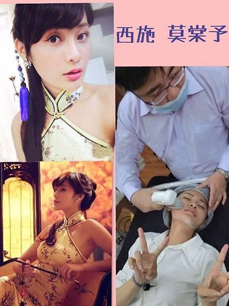 黃雍宗醫師-西施莫棠予-音波拉皮