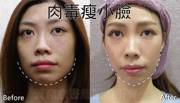 玻尿酸隆鼻-下巴-鼻樑-塌鼻子-回春-舒顏萃-肌膚水分-光澤-肉毒-臉頰寬-小V臉