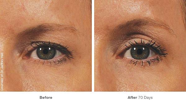 img_template_beforeafter_brow12.jpg