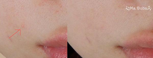 淨柔膚雷射, M22光梭雷射, 毛孔變小, 皮膚變亮
