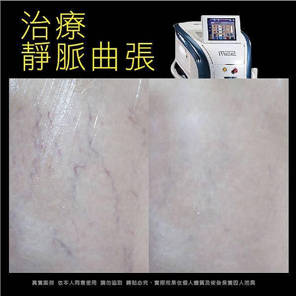 M22光梭雷射 治療靜脈曲張、血管問題