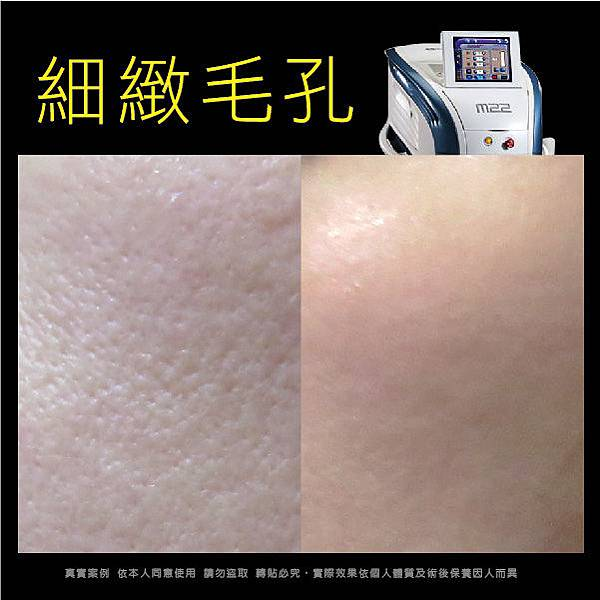 M22光梭雷射 治療凹疤、痘痘疤、暗斑、毛孔粗大