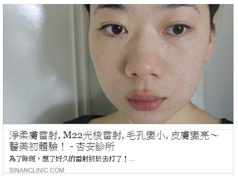 老化、紫外線、肌膚乾裂、斑點問題 素人分享 毛孔變小 皮膚變亮的初體驗