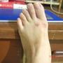 受傷的左腳掌.JPG
