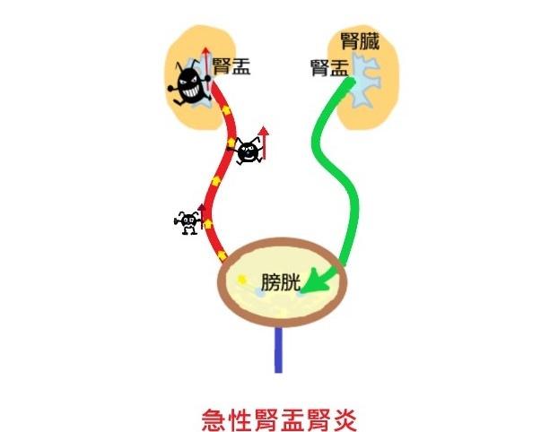 急性 腎盂 腎炎