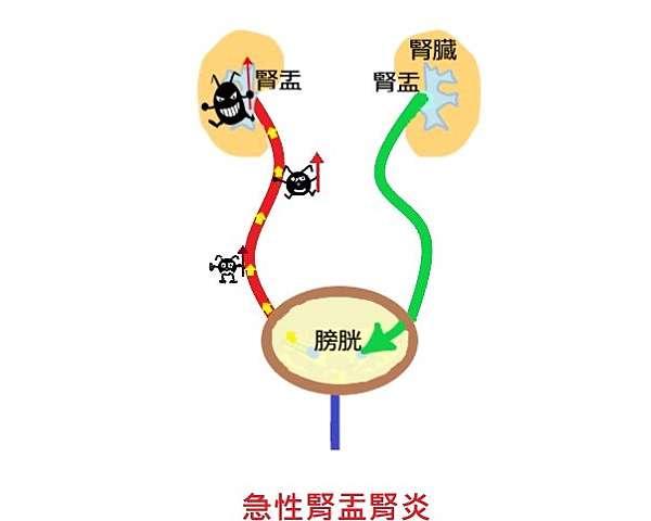 腎炎 原因 腎盂 急性 【医師監修】慢性腎盂腎炎の症状、治療法とは?病院へ行くべきなのはどんなとき?