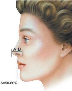 nose-19.jpg