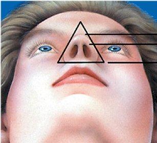 nose-16.jpg
