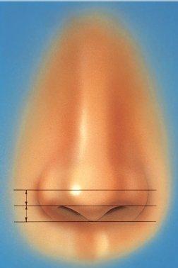 nose-11.jpg
