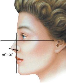 nose-22.jpg