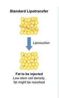 fat graft-5