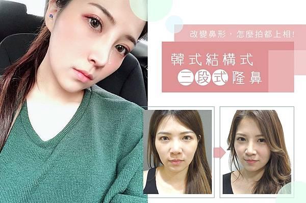 洪維翎-韓式結構式三段式隆鼻.jpg