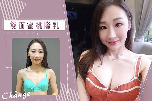 蘇渝婷-雙面蜜桃隆乳01.jpg