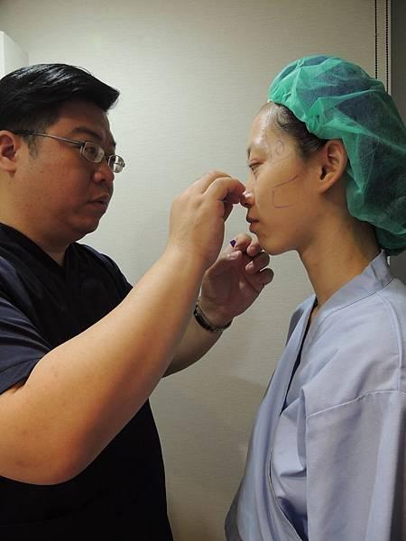 眼袋手術術前標記
