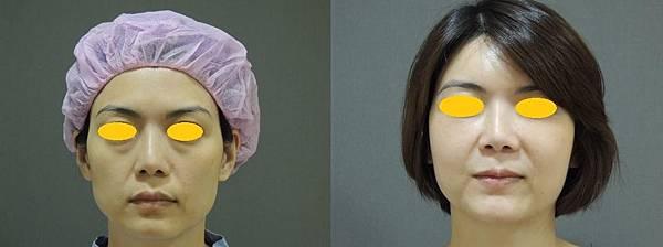 eyebag-2.jpg