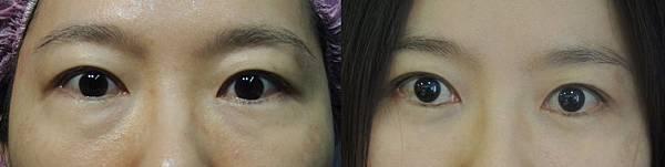 eyebag-5.jpg