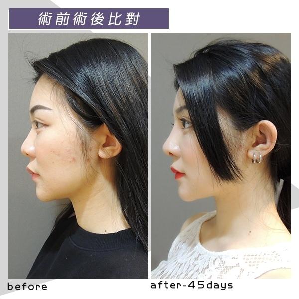 複合式隆鼻, 縮鼻翼