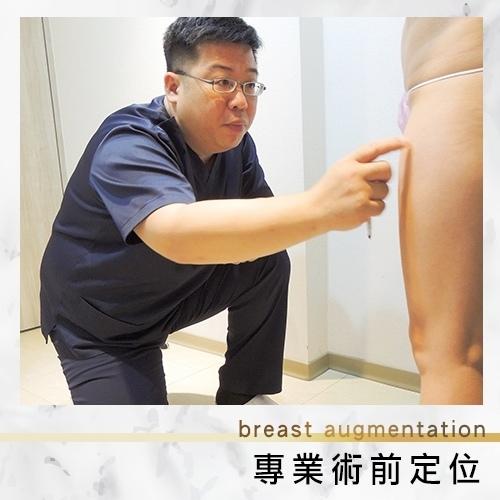 林敬鈞醫師進行抽脂隆乳術前定位