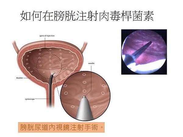 膀胱內注射肉毒桿菌素.jpg