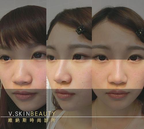 06幫我做一張手術前到後的三拼圖 鼻子以外的地方加平行陰影 鼻子保留原色.jpg