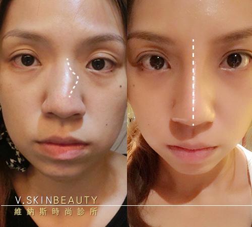 07雙拼術前左術後右 鼻子畫線.jpg