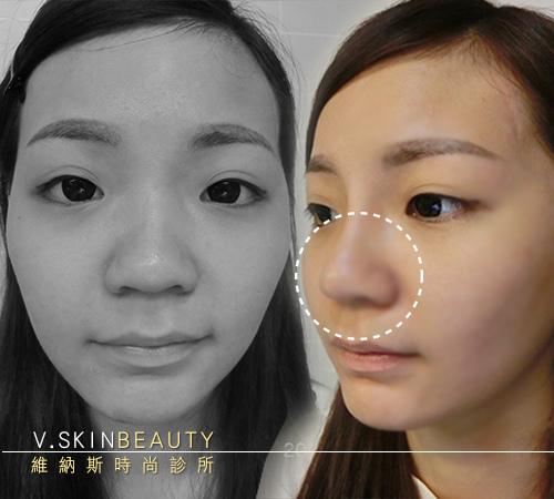 08做此圖風格 把鼻子用小圈圈出來 做對比 找蓮霧鼻整完變美到照片.jpg