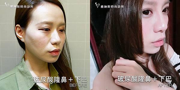 玻尿酸隆鼻下巴1008-20.jpg