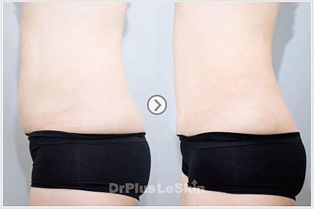 麗思003-UltraShape標靶震波溶脂+脈衝光除毛+果酸換膚 廖苑利醫生推薦