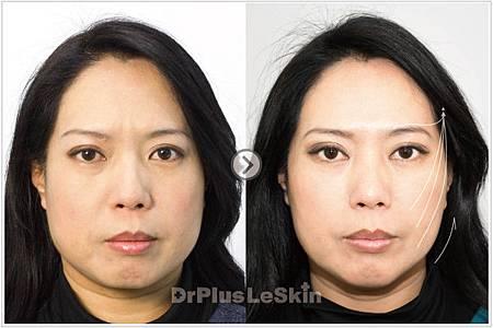 麗思004-逆齡拉提術 心美人療程 Ulthera超音波拉皮(俗稱極線超音波拉提) 廖苑利醫生推薦