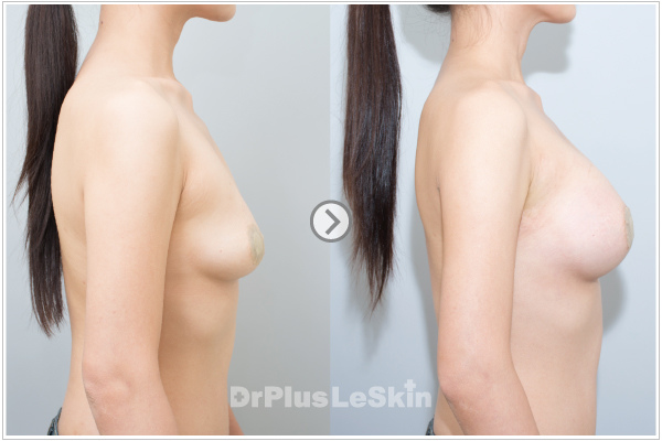 麗思診所 推薦 廖苑利醫師 果凍矽膠隆乳 iPhone6 Plus 自然水滴胸形 莢膜攣縮 術後按摩 -004